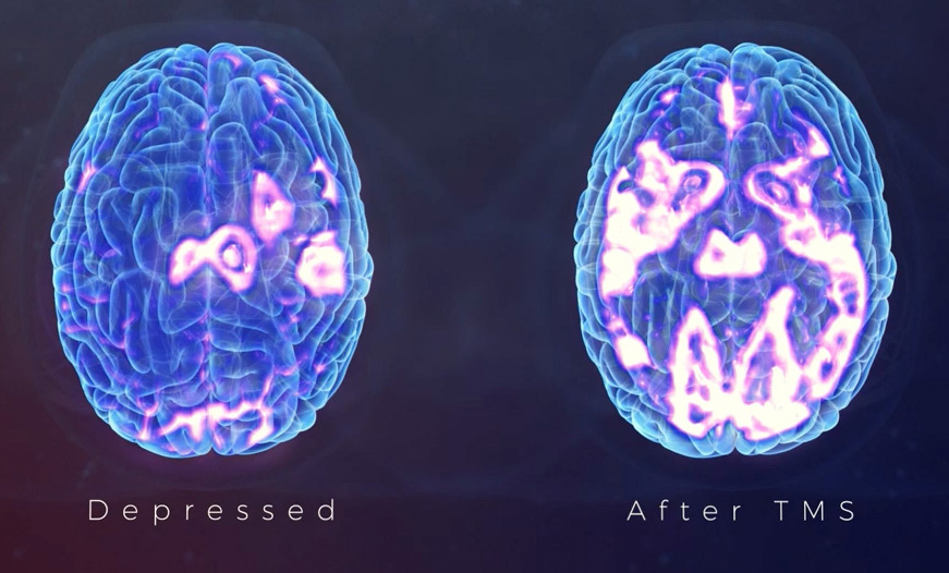 A brain scan of the positive effects of TMS