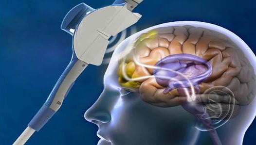 TMS stimulation image